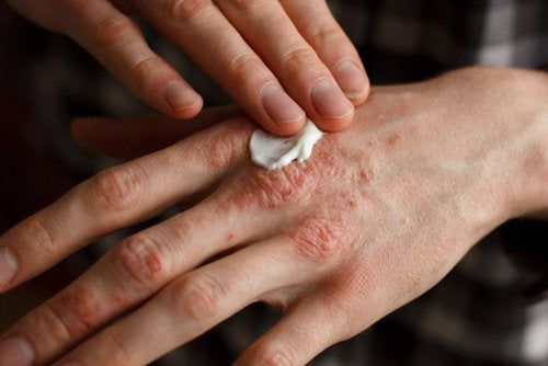 A person applying cream to a hand affected with psoriasis.