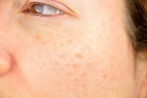 Spots on woman's face