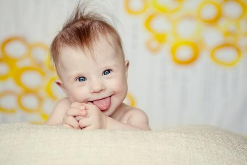 A baby with Down syndrome.