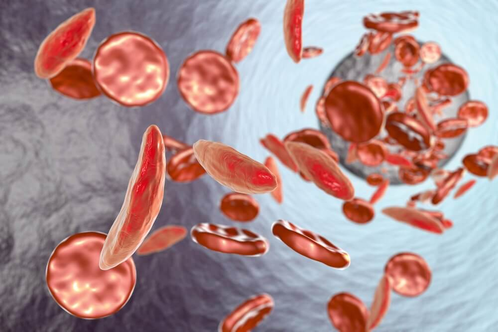 If you want to prevent anemia at home, you need to know your iron levels.