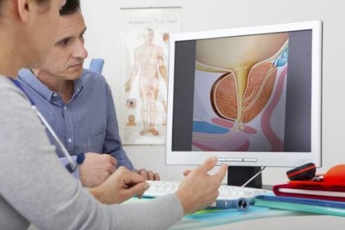 What Are the Treatments for Benign Prostatic Hyperplasia?