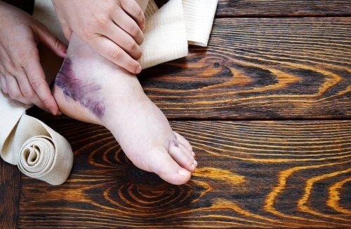 Heal a Sprained Ankle with Complementary Remedies