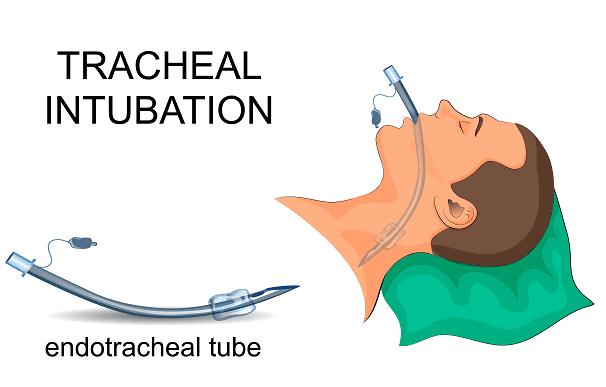 Endotracheal tubes.