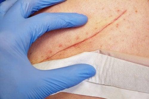 Basic Wound Closure Techniques