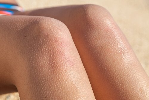 Some legs with goose bumps.