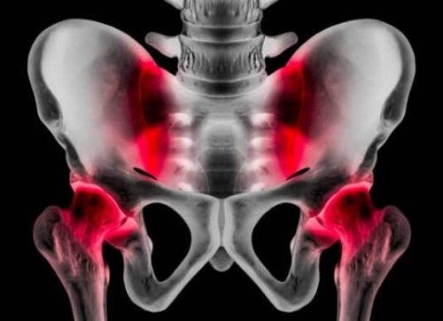 Athletic Pubalgia: Causes, Symptoms, and Treatment