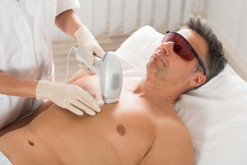 A man undergoing laser hair removal treatment.