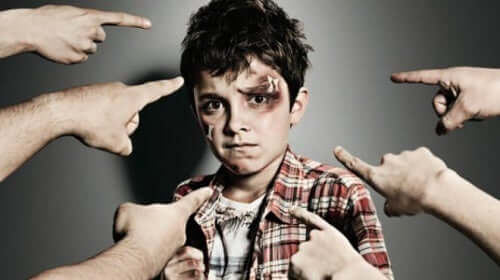 Many fingers pointing at a boy with a black eye.