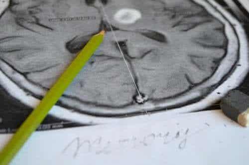 Amnesia Symptoms and Prevention
