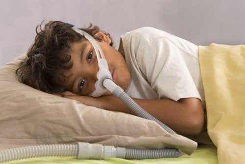 Obstructive Sleep Apnea in Children