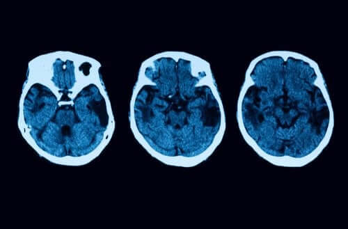 Posterior Cortical Atrophy Diagnosis and Treatment