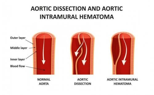 aortic dissection artery vessels