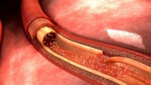 Aortic Dissection: What It is and What Causes it