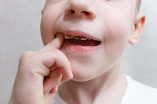 Boy with tooth decay and a finger in his mouth