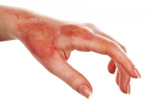 A burnt hand.