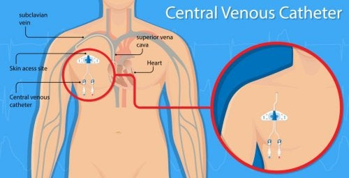 Vascular Perforation and Central Venous Catheters