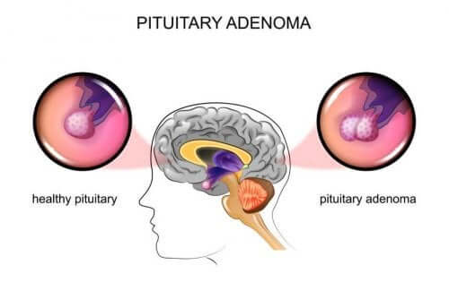 Pituitary Adenomas: Causes and Symptoms