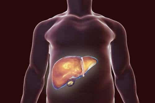 Gallbladder Diet Do's and Don'ts