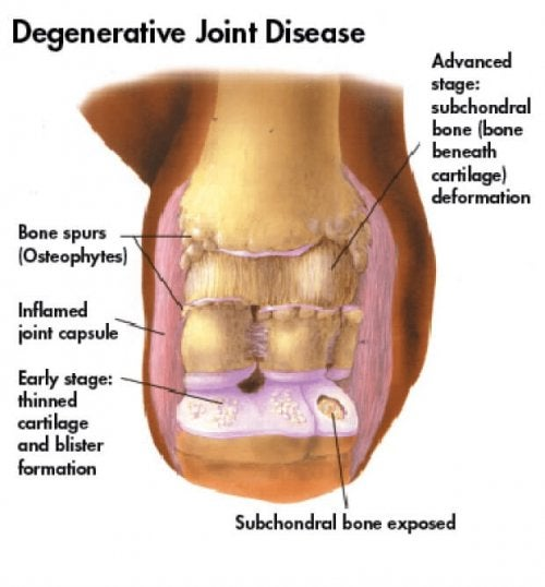 Degenerative Joint Disease: Causes and Treatment
