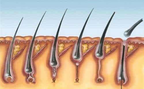 Multiple Pilomatrixoma Syndrome