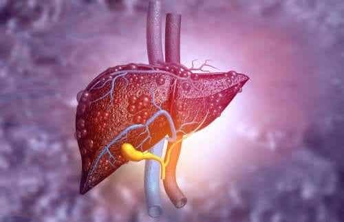 Biliary Atresia: Symptoms and Treatment