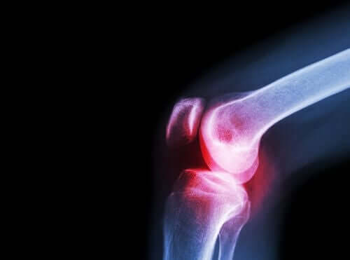 Rheumatoid arthritis of the knee.