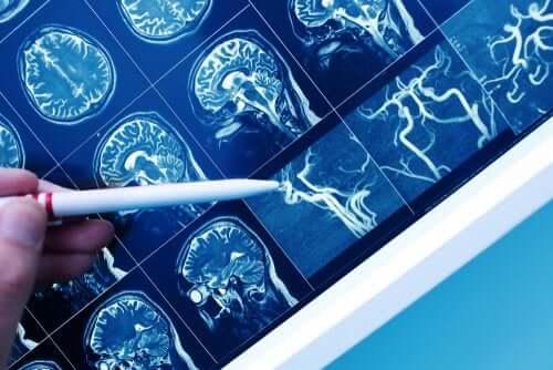 What's Vascular Dementia?