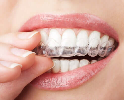 A woman wearing clear aligners.