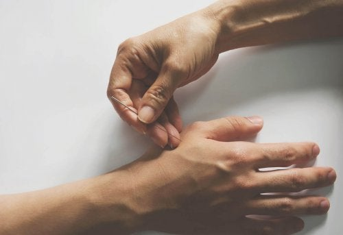 Person sticking a needle into another person's hand acupuncture
