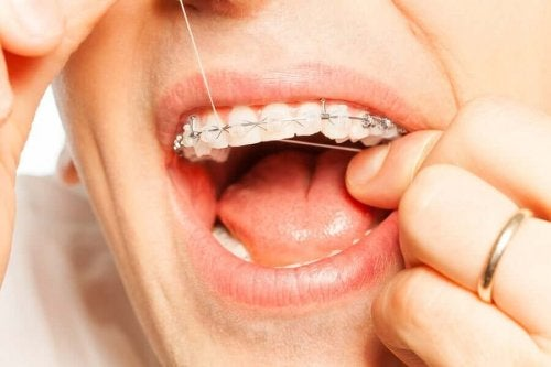 A person with orthodontics flossing.
