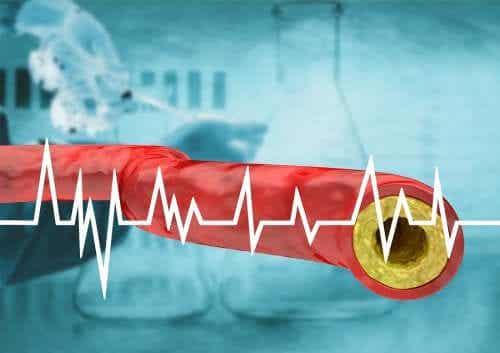 Keep High Cholesterol at Bay Through Your Diet