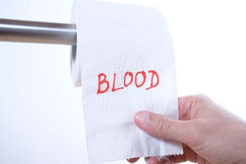 Rectal Bleeding: Why Does it Happen?