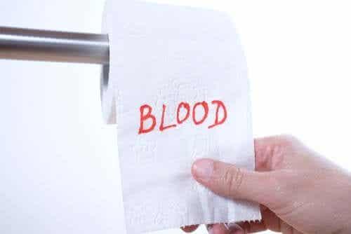 Rectal Bleeding: Why Does it Happen?
