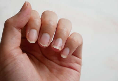 Four Natural Ingredients to Treat Brittle Nails