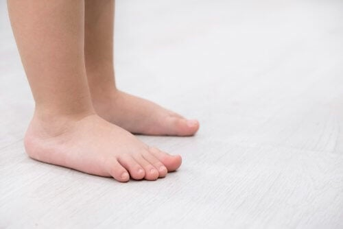 Flat Feet: Characteristics and Treatment