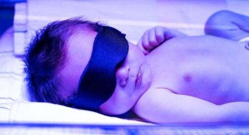 A newborn in an incubator.