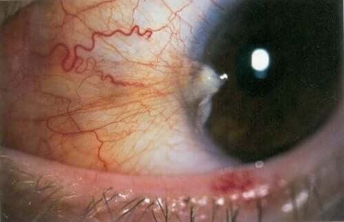 Closeup of an eye with pterigion (conjunctiva).