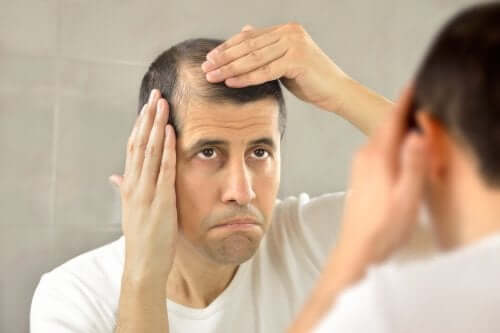 A man with hair loss.