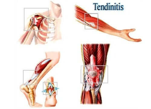 A representation of tendonitis.
