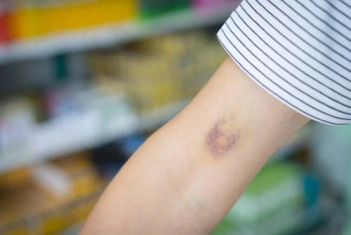 A person with a bruise.