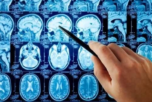 En person som pekar på hjärnmetastaser i en röntgen.