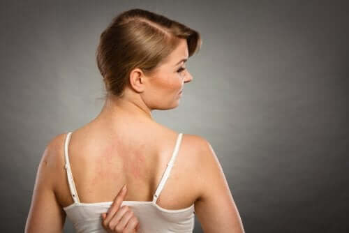 A woman with a rash on her back.