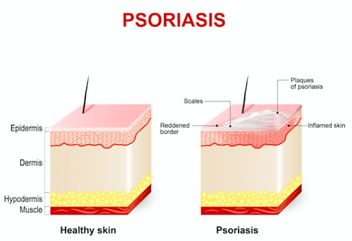 An illustration of psoriasis.