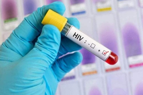 HIV blood test.