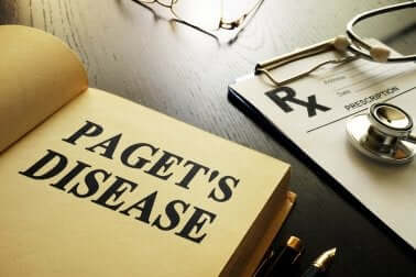 Paget's Disease - Everything You Need to Know