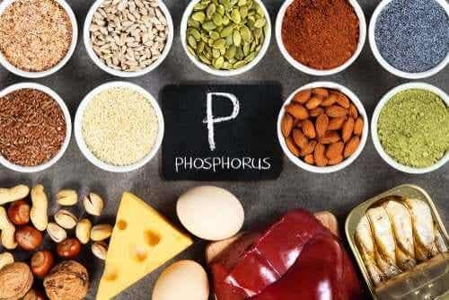 Hyperphosphatemia: A Phosphate Imbalance