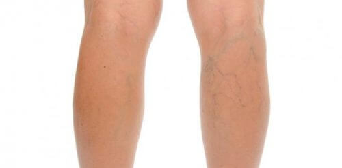 Varicose veins on a pair of legs.