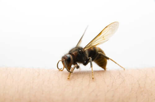 What to Do After an Asian Hornet Sting