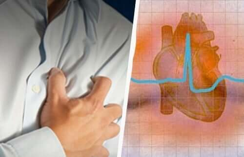 Cardiac arrhythmia pain side effects of verapamil.