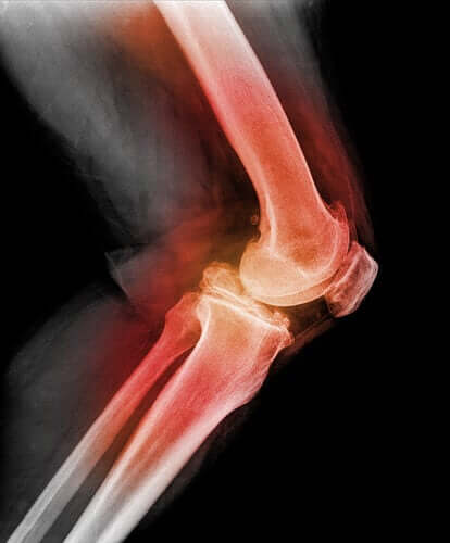 Learn All About Kneecap Dislocation